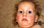 Аллергия от арбуза