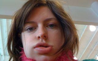 Отек губы аллергия