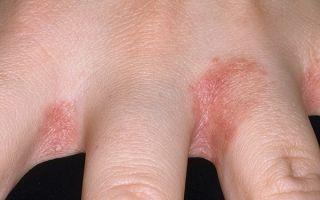 Кандидозный дерматит у детей