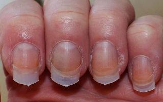 Аллергия на жидкость для снятия лака