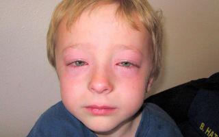 Скорая помощь при аллергии в домашних условиях