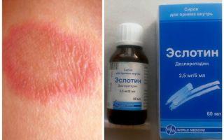 Аллергия у ребенка красные пятна на ногах
