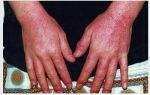 Бывает ли аллергия на воду