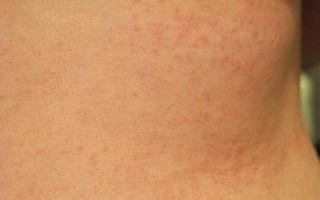 Аллергия на кефир у взрослых