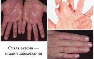 Как лечить экзема на руках