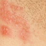 Аллергия на ежедневные прокладки симптомы