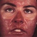 Аллергическая реакция на солнце