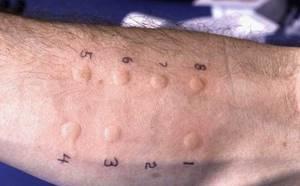 Аллергия у морских свинок