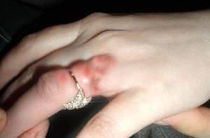 Аллергия на белое золото