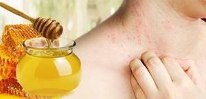 Аллергия от меда как проявляется