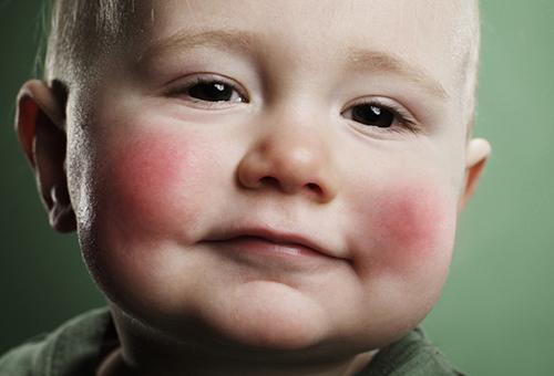 Аллергия на овсяную кашу у грудничка