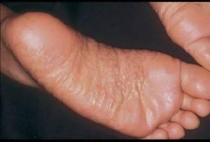 Дерматит на пальцах ног
