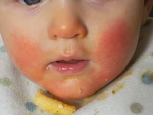 Аллергия на молочную кашу у грудничка
