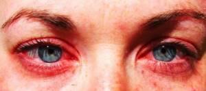 Опухли глаза от аллергии что делать