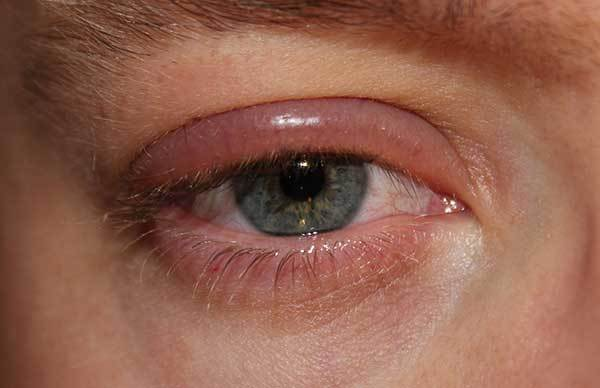 Аллергия на веках глаз лечение