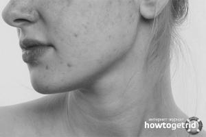 Высыпания на щеках у взрослого причины