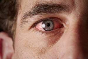 Чешется глаз как снять зуд