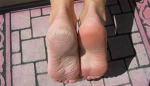 Чем лечить экзему на ногах