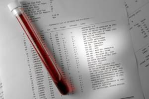 Общий анализ крови при аллергии