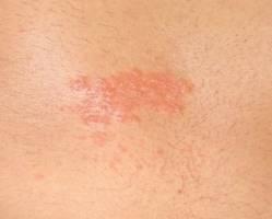Виды кожной сыпи