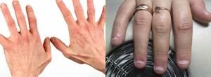 Аллергия на жидкость для снятия гель лака