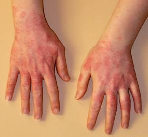 Аллергия на опилки
