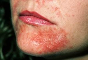 Признаки аллергии на коже