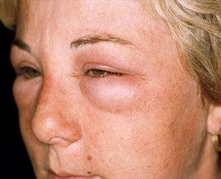 Одышка аллергическая
