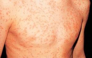 Аллергия на уксус