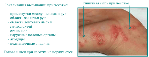 Чем снять сильный зуд кожи