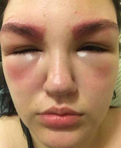 Аллергия на краску для бровей что делать