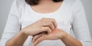Аллергия на комаров у детей