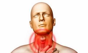 Аллергия на табак симптомы