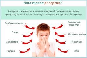 Крапивница лечение в домашних условиях