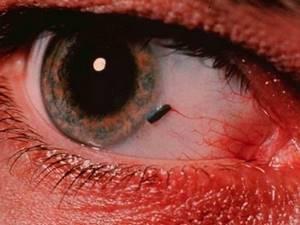 Чешутся глаза чем лечить