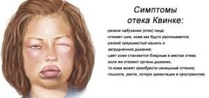 Аллергия по типу крапивницы лечение