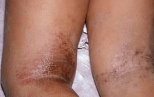 Как лечить аллергическую сыпь у взрослого