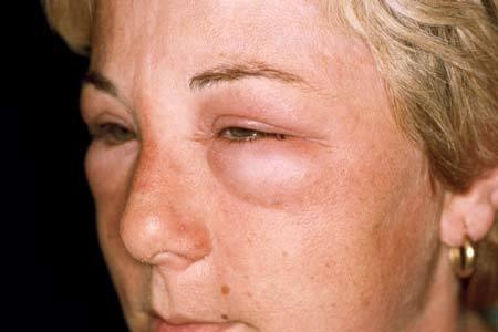 Отек горла аллергия