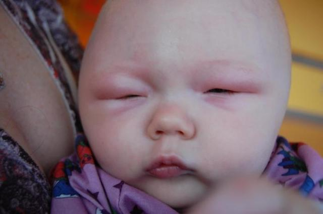 Аллергия на эспумизан у грудничка