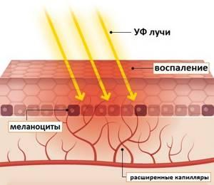 От солнца чешется кожа
