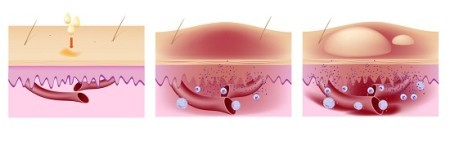 Аллергический зуд кожи лечение