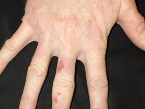 Аллергия на цемент