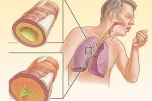 Аллергия на пыльцу лекарства