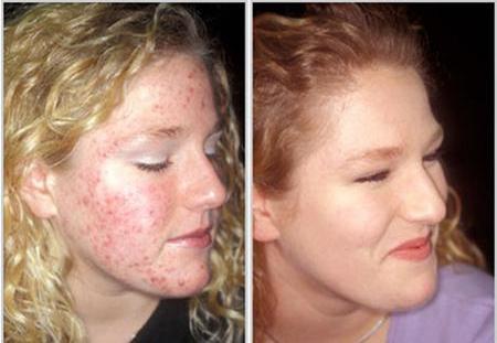 Цинковая мазь от аллергии на коже