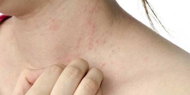 Аллергический дерматит у беременных