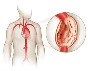 Массаж при астме и бронхите