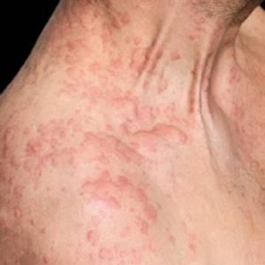 Симптомы при аллергии у взрослых