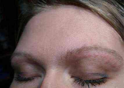 Аллергия на тени