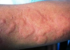 Проявление аллергии на коже у взрослых