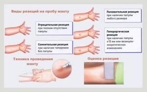 Можно ли делать манту при аллергии